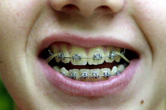 De tarieven voor orthodontisten stegen dit voorjaar flink nadat de prijzen waren losgelaten, soms met wel 30 procent. De tarieven gaan nu weer met 16 procent naar beneden in 2013. Foto ANP