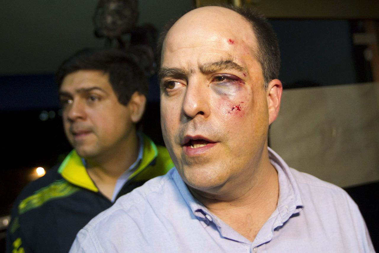 Venezuelan opposition lawmaker Julio Borges of the Primero Justicia party arrives at a news conference with a bruised and bloodied face after a fight broke out at a session of the National Assembly in Caracas April 30, 2013. Fistfights broke out in Venezuela's parliament on Tuesday, leaving a number of legislators bloodied and injured during an angry session linked to the South American nation's bitter election dispute. The opposition said seven of its parliamentarians were attacked and hurt when protesting against a measure to block them from speaking in the National Assembly over their refusal to recognize President Nicolas Maduro's victory in the April 14 election. REUTERS/Carlos Garcia Rawlins (VENEZUELA - Tags: POLITICS CIVIL UNREST)