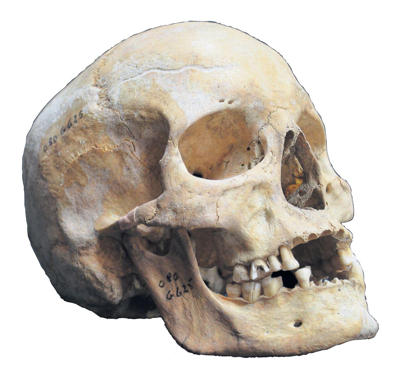 Deense leprapatiënt Jorge 625.