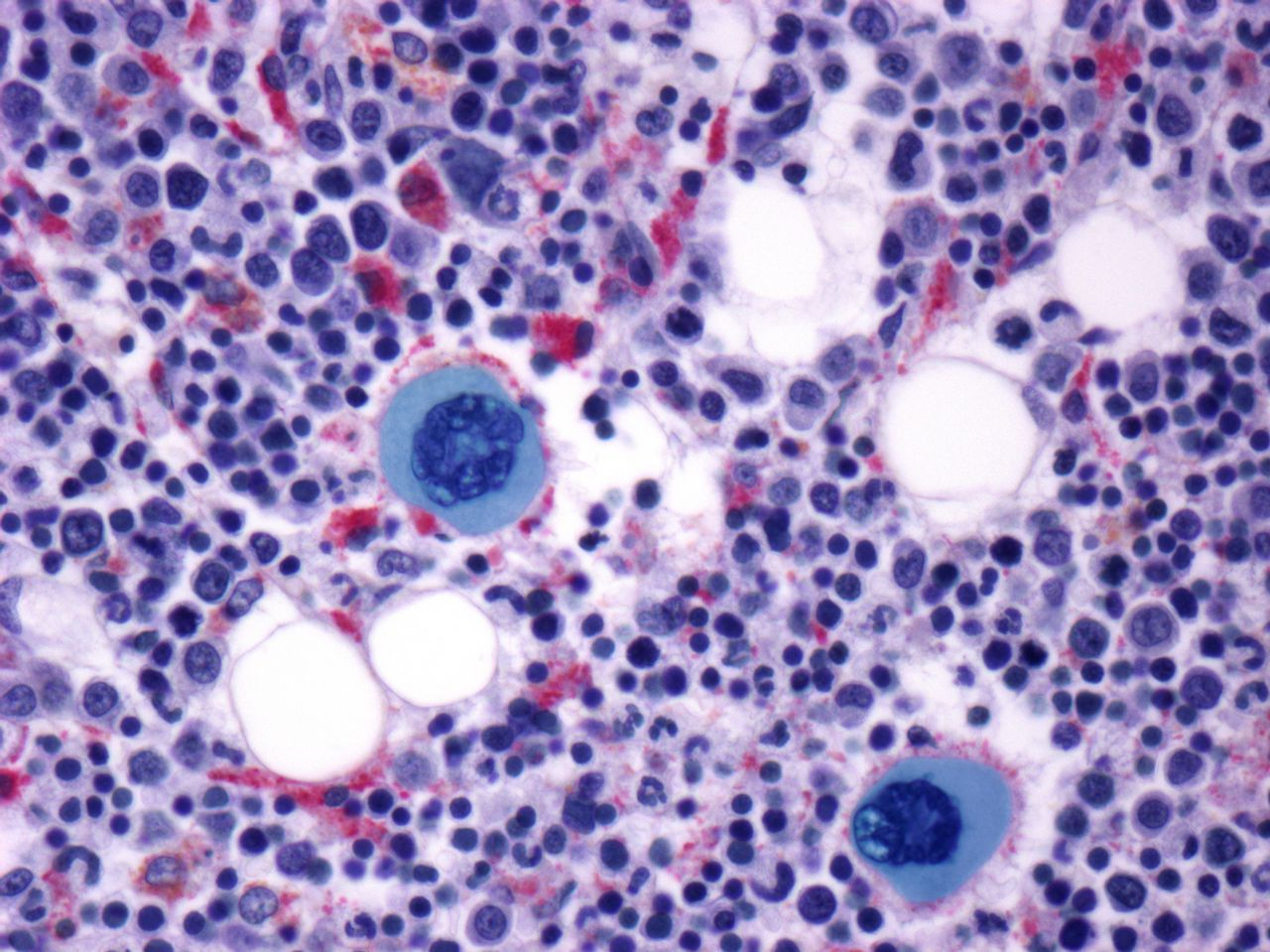 Bone marrow. Light micrograph of a section through bone marrow showing two megakaryocytes (blue). These cells produce platelets. Magnification: x400 when printed at 10 centimetres wide.