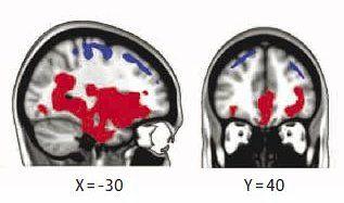 Hersenscan waarin in rood is aangegeven waar na een ruimtereis meer water in de hersenen van een astronaut zit dan voor de reis. Blauw betekent: minder water op die plaats.