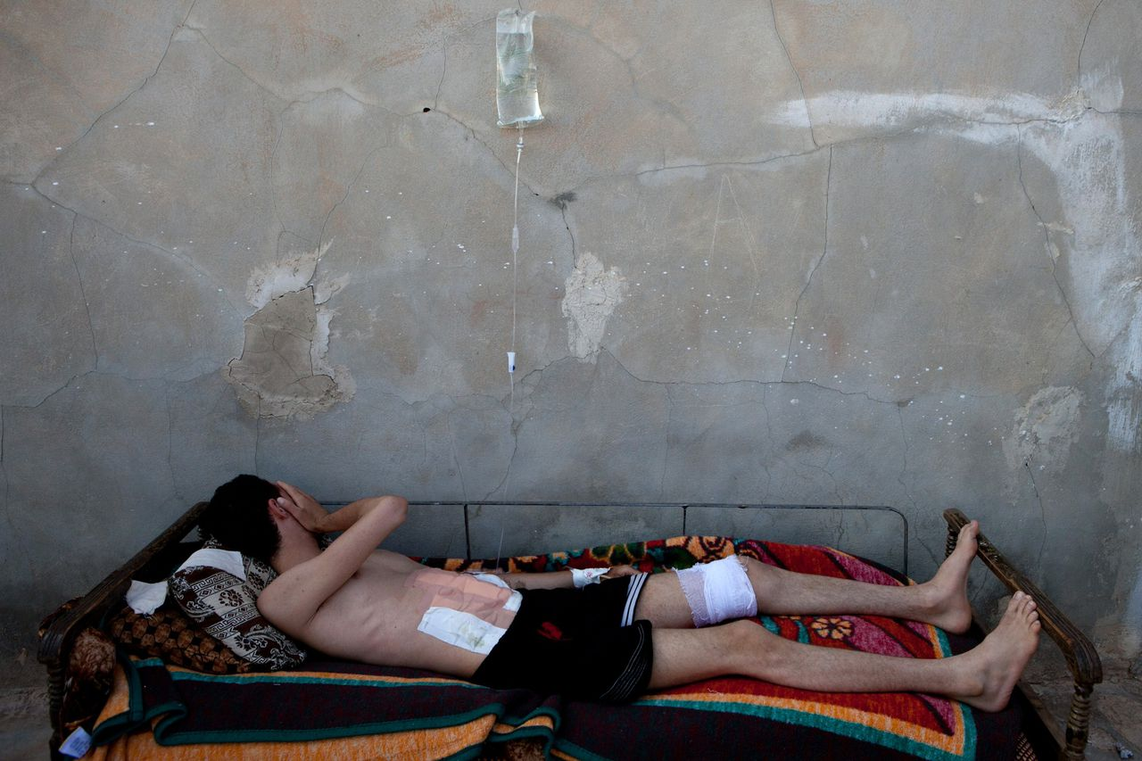 TOPSHOTS A Syrian man lies on a bed as he recovers from wounds in his stomach and leg made by the deflagration of a shell tank in Kfar Sajna in the northwestern province of Idlib on July 8, 2012. International envoy Kofi Annan has arrived in Syria after admitting that his peace plan has so far failed to end nearly 16 months of carnage, as scores more die in the violence-wracked country. AFP PHOTO/LO