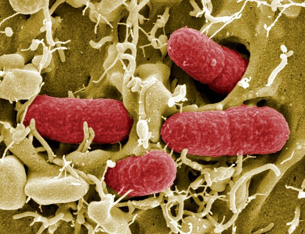 """This handout image made available by the """"Helmholtz-Zentrum für Infektionsforschung (HZI)"""" on May 26, 2011 shows the E. coli (EHEC) bacteria. Germany has warned consumers to be especially careful when eating tomatoes, lettuce, and cucumbers which are believed to be responsible for an outbreak of food poisoning that has left three dead. AFP PHOTO HO / Manfred Rohde Helmholtz-Zentrum für Infektionsforschung (HZI)"""" RESTRICTED TO EDITORIAL USE - MANDATORY CREDIT """" AFP PHOTO / RKI - NO MARKETING NO ADVERTISING CAMPAIGNS - DISTRIBUTED AS A SERVICE TO CLIENTS"""