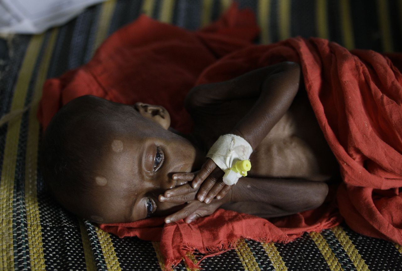 """One-year-old, Habibo Bashir, rests on a bed at a Doctors Without Borders hospital where he is being treated for severe malnutrition, in Dagahaley Camp, outside Dadaab, Kenya, Monday, July 11, 2011. U.N. refugee chief Antonio Guterres said Sunday that drought-ridden Somalia is the """"worst humanitarian disaster"""" in the world, after meeting with refugees who endured unspeakable hardship to reach the world's largest refugee camp in Dadaab, Kenya. (AP Photo/Rebecca Blackwell)"""
