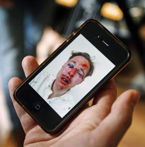 De schokkende foto die De Bruijn zelf verspreidde getoond op een iPhone