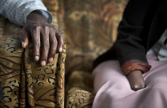 Links de hand van Emmanuel Ndayisaba. Rechts de stomp van Alice Mukarurinda. Zij verloor haar hand en haar baby. Hij bediende de hakbijl die dat inrichtte. Nu zijn ze vrienden. Ze wonen in dezelfde buurt en doen boodschappen bij dezelfde winkel.