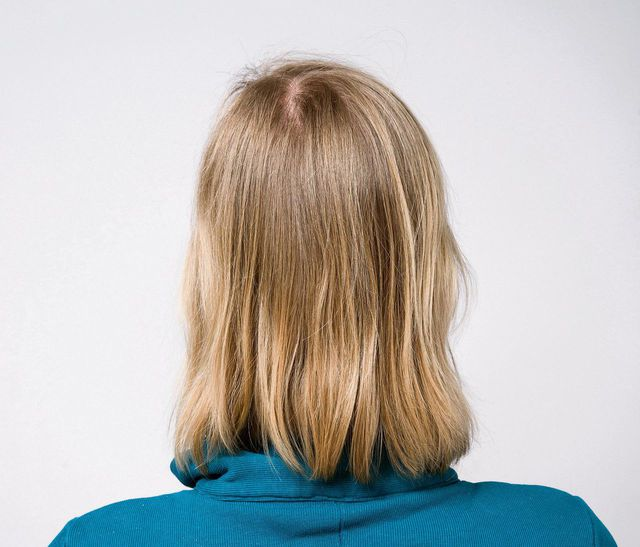 What happens if you don't wash your hair for 56 days? - NRC