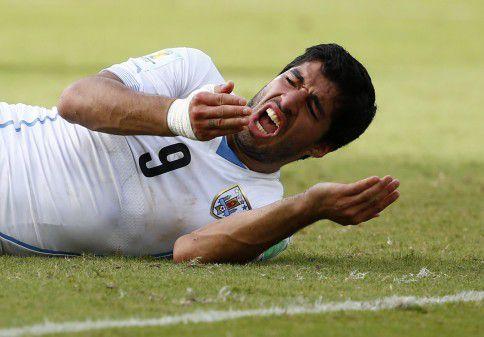 Luis Suárez acteert bezorgdheid om zijn gebit nadat de Uruguayaanse spits enkele seconden eerder zijn tanden in de schouder van Giorgio Chiellini zette.