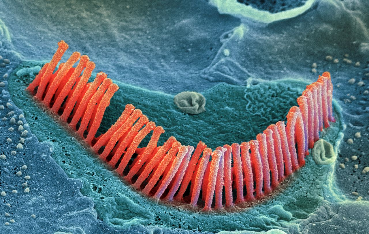 Inner ear hair cells. Coloured scanning electron micrograph (SEM) of sensory outer hair cells (stereocilia) from the organ of corti, in the cochlea of the inner ear. These cells are surrounded by a fluid called the endolymph. As sound enters the ear it causes waves to form in the endolymph, which in turn cause these hairs to move. The movement is converted into an electrical signal, which is passed to the brain. The V-shaped arrangement of hairs lies on the top of a single cell. Magnification: x21,000 when printed 10cm wide.
