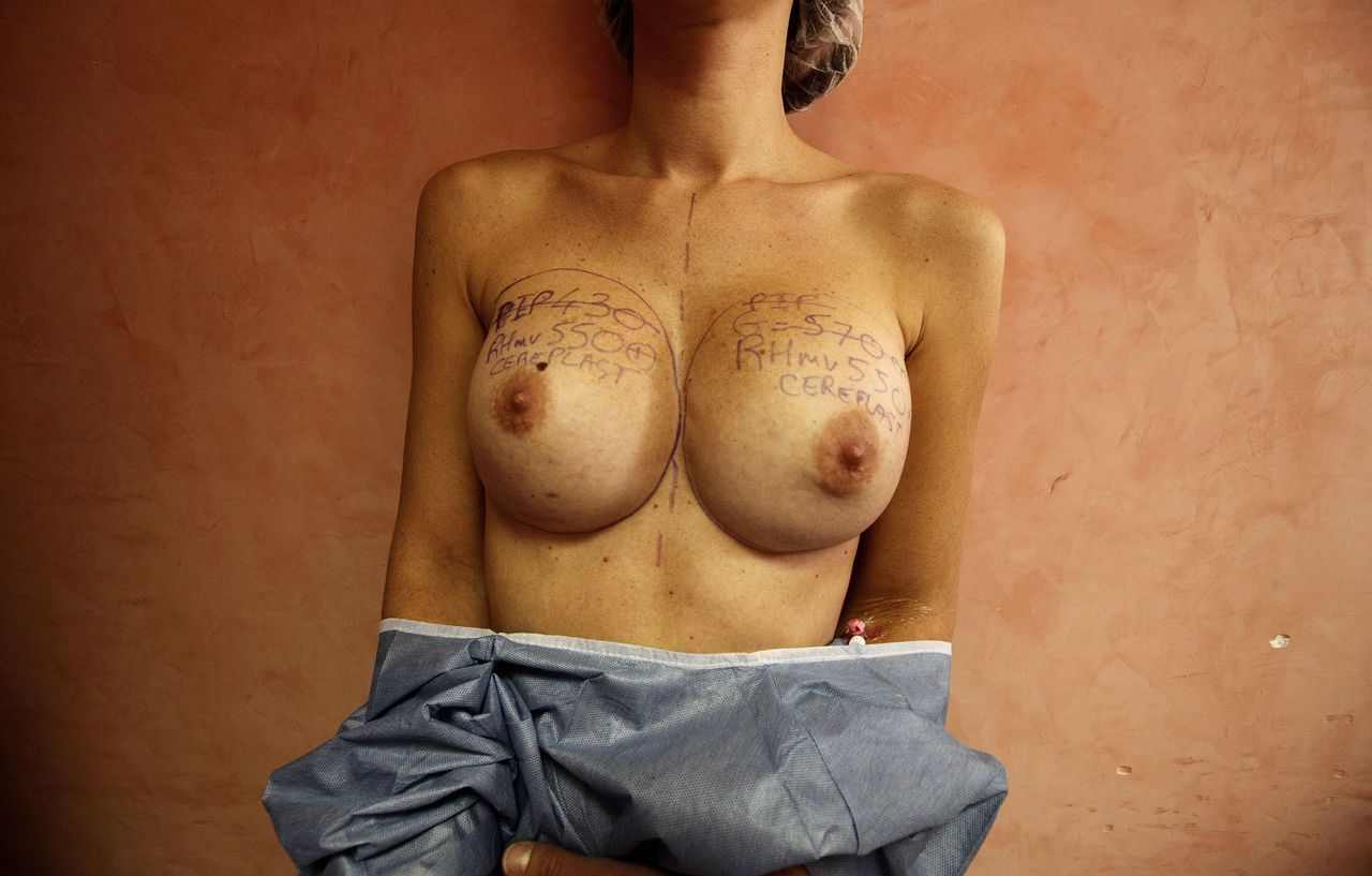 The torso of a patient with notation lines on her breasts is seen before her operation by plastic surgeon Denis Boucq (not seen) to remove silicone gel breast implants manufactured by French company Poly Implant Prothese (PIP) in a clinic in Nice December 21, 2011. French medical device regulatory authority (AFSSAPS) recalled PIP breast implants in March 2010 after it concluded that their performance and safety were not in accordance with current standards. France will offer surgery to remove the breast implants of up to 30,000 women if a study due out this week finds that the silicone they are made from could cause cancer, the health minister said on Tuesday. REUTERS/Eric Gaillard (FRANCE - Tags: HEALTH TPX IMAGES OF THE DAY) TEMPLATE OUT