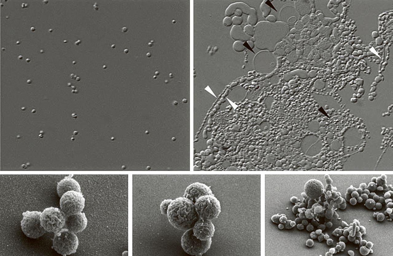 Onder de microscoop zien kolonies van JCVI-syn1.0 (midden links) er anders uit dan JVCI-syn3.0 (midden rechts). Onder: detailopnames van beide versies kunstbacteriën.