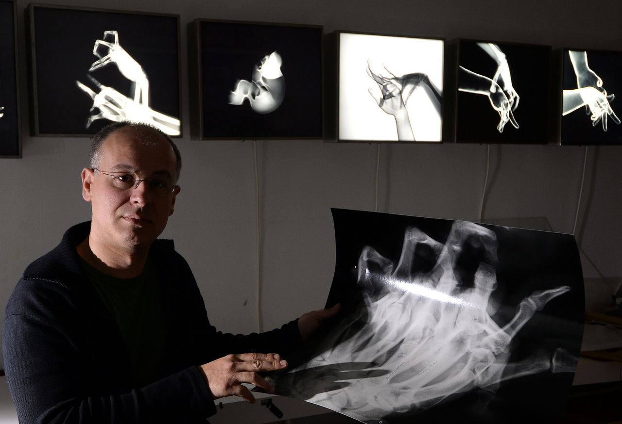 """French artist Marc Ferrante presents his art works on May 24, 2013 in Strasbourg, eastern France. About 100 X-rays of the hand pictured with the help of radiologists, surgeons and X-ray technicians and the contribution of marionettists, dancers, magicians, shadow-play or puppetry artists have been displayed in several exhibitions called """"hand plays"""". The nuclear safety authority (ASN) recalled on May 23, 2013, that the law prohibits any use of X-rays or other forms of radioactivity on the human body for artistic use, these radiations having to be held with diagnoses or medical care. AFP PHOTO / PATRICK HERTZOG RESTRICTED TO EDITORIAL USE, MANDATORY MENTION OF THE ARTIST UPON PUBLICATION, TO ILLUSTRATE THE EVENT AS SPECIFIED IN THE CAPTION"""
